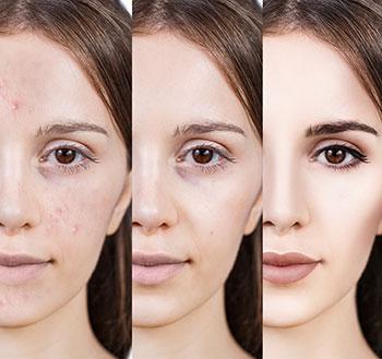 Tratamiento para cicatrices de con costo laser