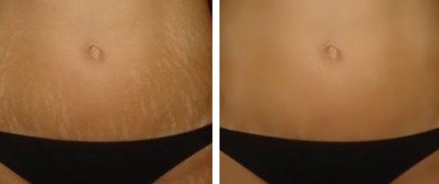 eliminacion de estrias con laser antes y despues de adelgazar