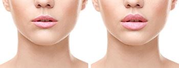 aumento de labios Málaga